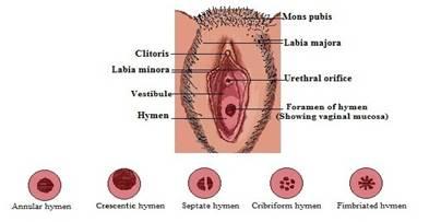 1914d99fc شكل 1: التشريح الطبيعي لفرج المرأة والتحولات في الظهور البكاري. حجم غشاء  البكارة
